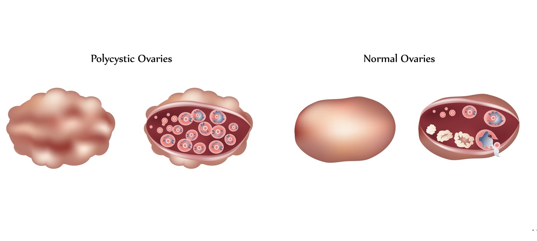 an overview of polycystic ovary syndrome essay
