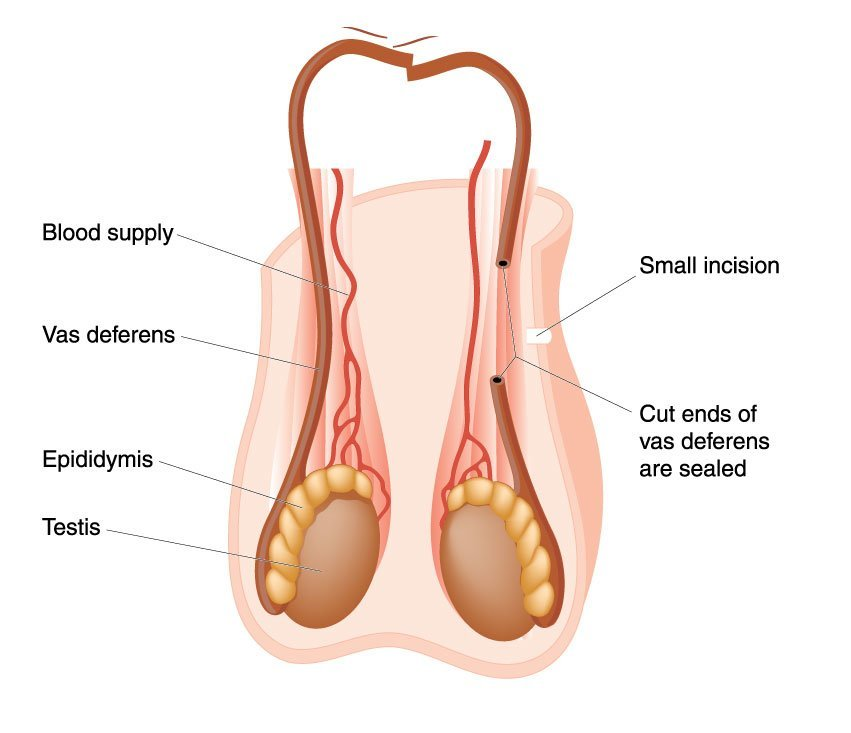 blocked-tubes-and-vasectomies