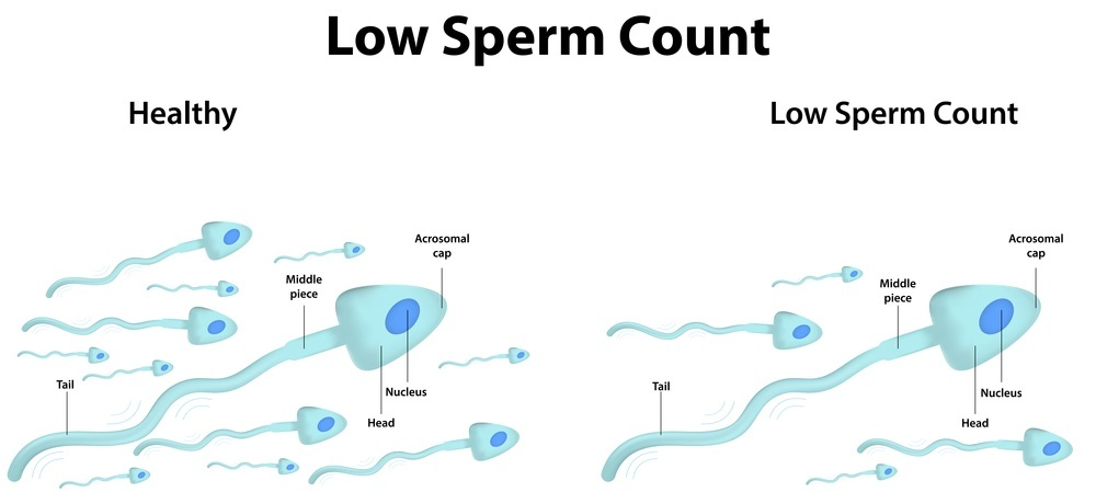 Sperm count infertility