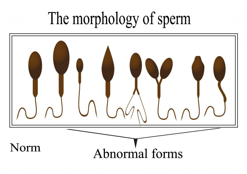 Gorgeous little causes of poor sperm morphology curves, ass, and